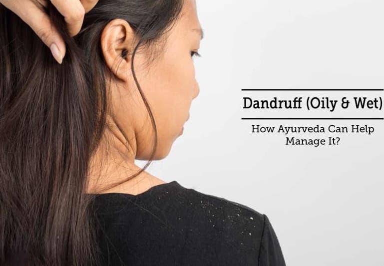 Dandruff(Oily & Wet)